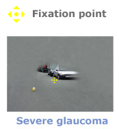 glaucome2_be