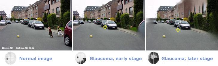 glaucome_en