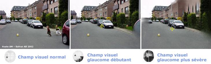glaucome_fr
