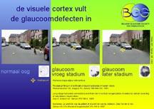 glaucoma-print01